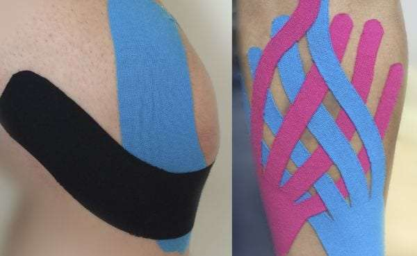 Example of kinesio tape on a knee and a leg as physical therapy pain treatment